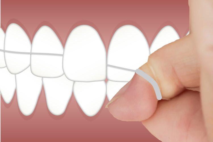 flossing, el dorado dental, santa fe, dentist